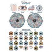 Poster Iridologia -  Iris diagnosi