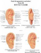 Set 3 Tavole di agopuntura auricolare